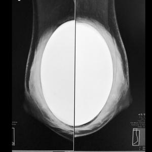 Mammographie et prothèse mammaire