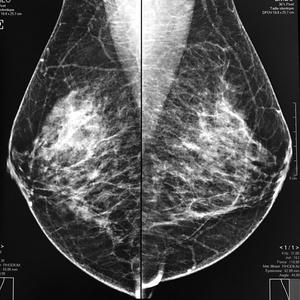 Mammographie numérisée