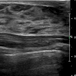 Mammographie femme enceinte