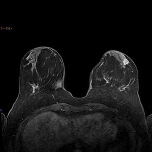 IRM mammaire